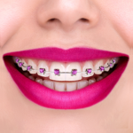 Braces Camera 1.3 APK (MOD, Unlimited Money)